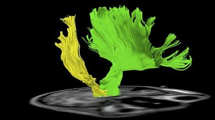 The brain image of Dan Stunkard shows how motor nerves on the right side of his brain, in yellow, are much more sparse after damage from an ATV accident than those on the left side, in green.
