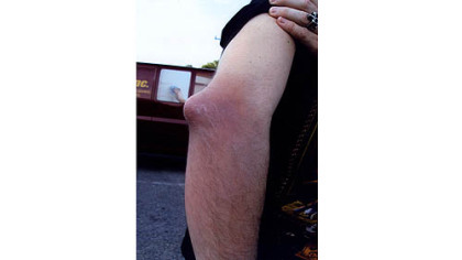 Chris Bauer&#039;s elbow after an attack of gout. The lump is tophi, an accumulation of uric acid under the skin.